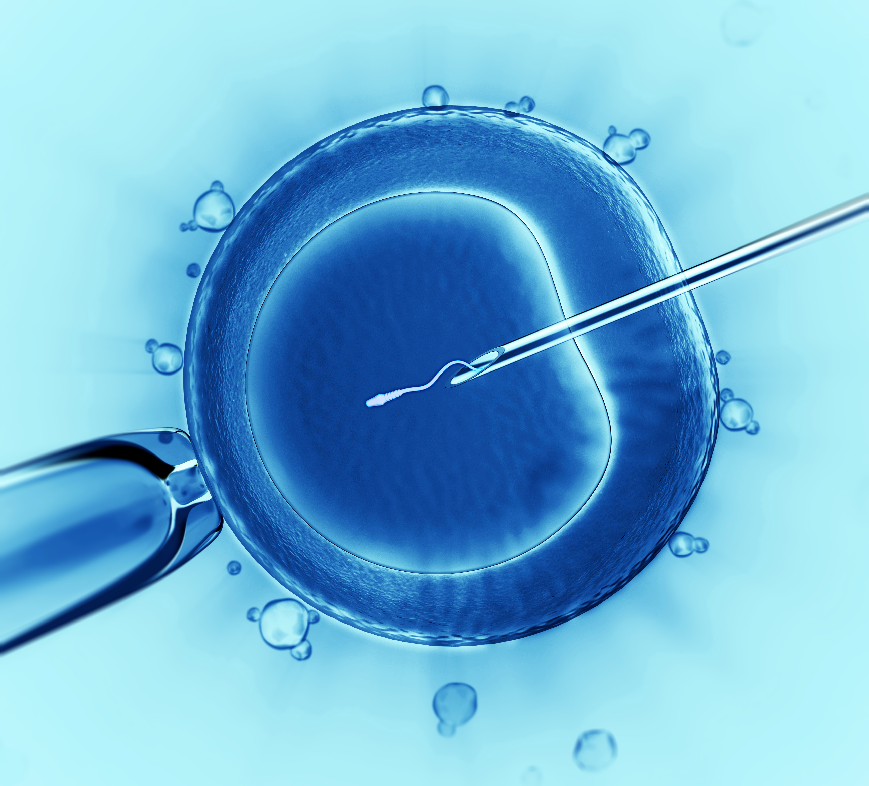 eko-otdelenie-spermi