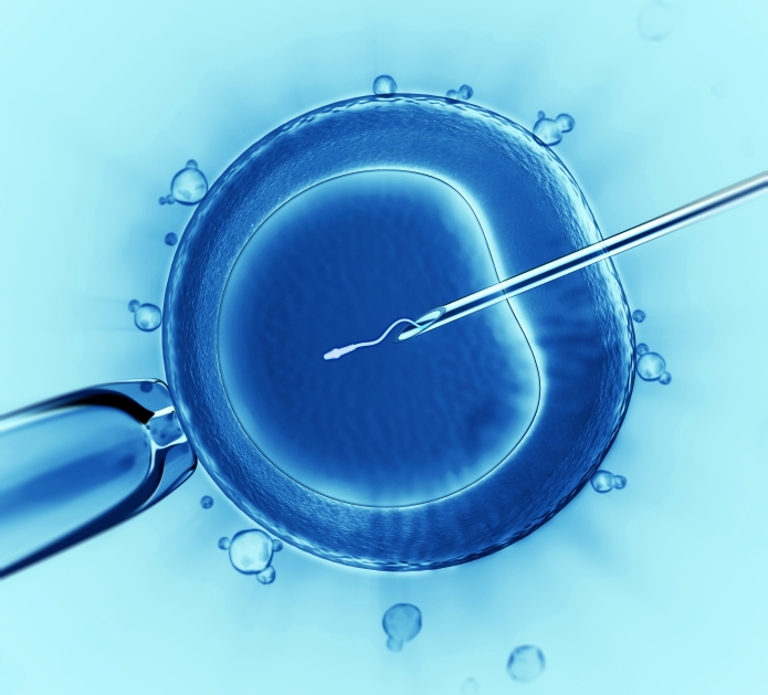 Image result for ivf